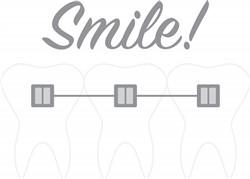 Braces Smile Print Art